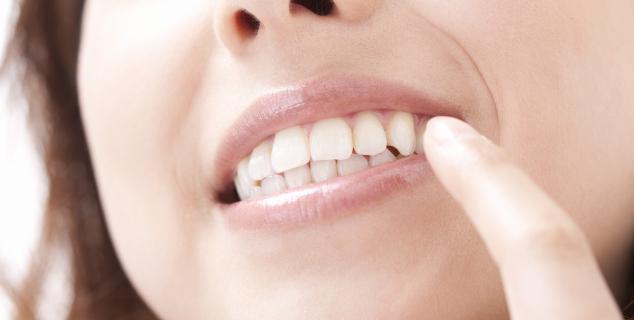 インプラントで、しっかり噛める歯へ